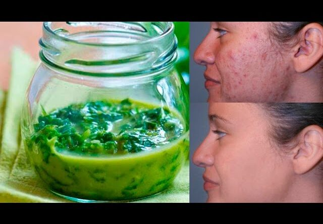 Cosmetic clinics are losing a lot of money, because of this home remedy