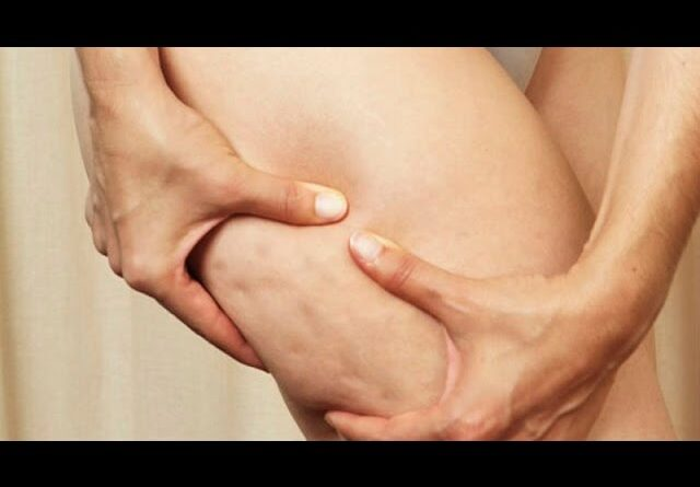 ACV, the syrup that will eliminate cellulite forever