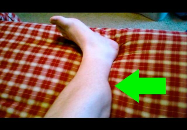 Have you ever had a nightly cramp in your leg? Why they happen and how to stop them
